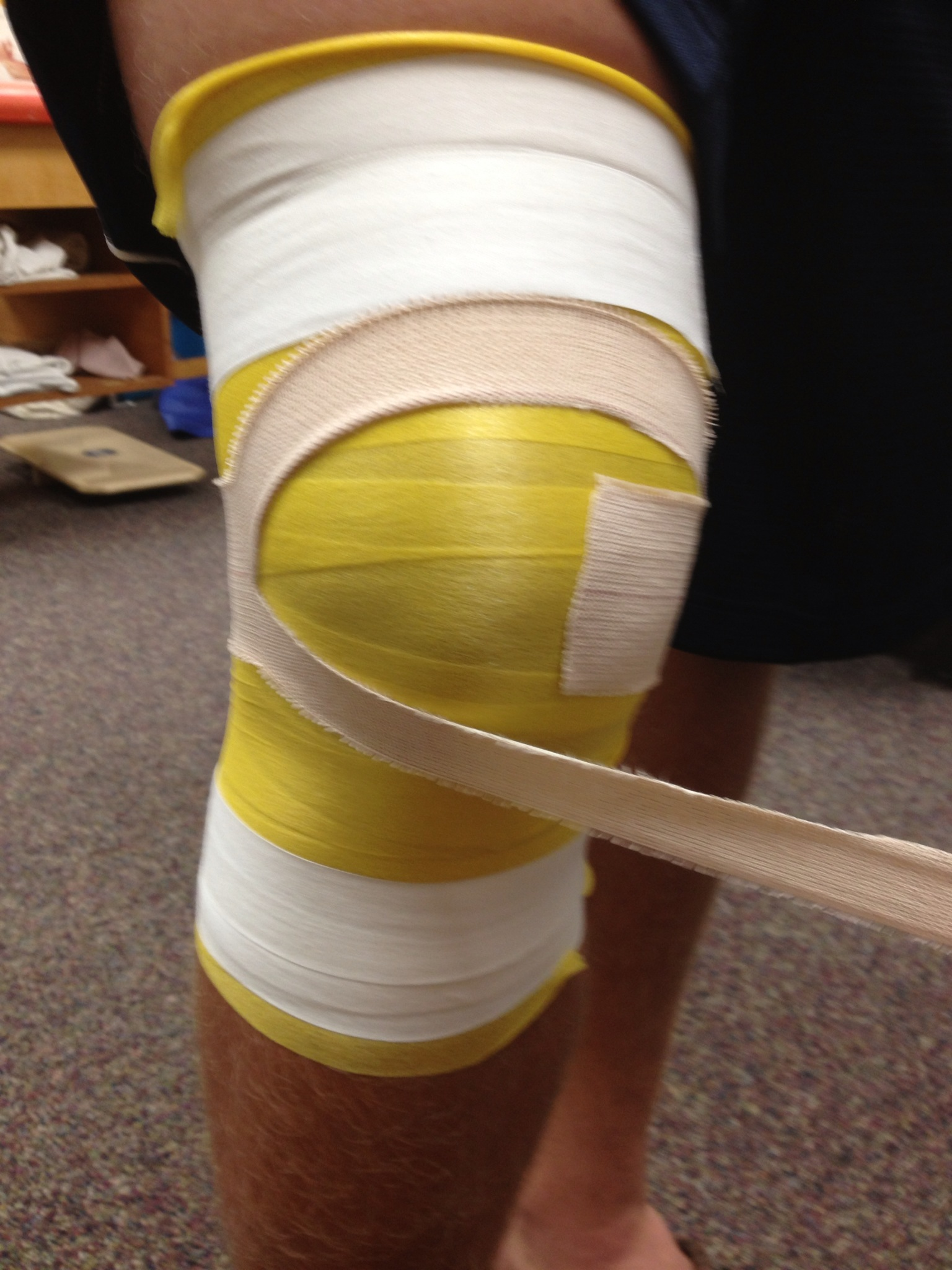 Taping a knee - anatomy of the knee diagram