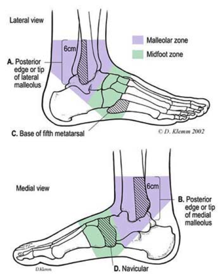 Do I Need An X Ray Simple Ankle And Foot Rules Osi