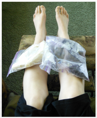 Shin Splints icing