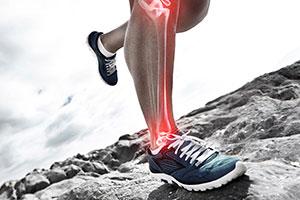 Custom Foot Orthotics / Foot Pain
